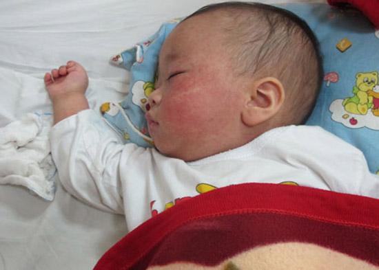 Hướng dẫn chăm sóc y tế bé đang bị bệnh sởi