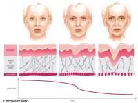 Collagen giảm 1% mỗi năm từ tuổi 20