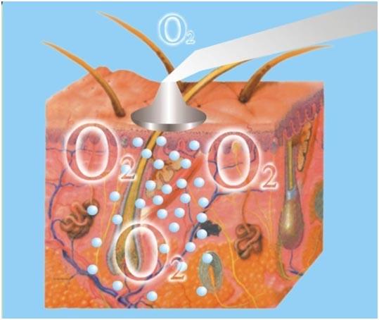 máy phun oxy nén BD-925