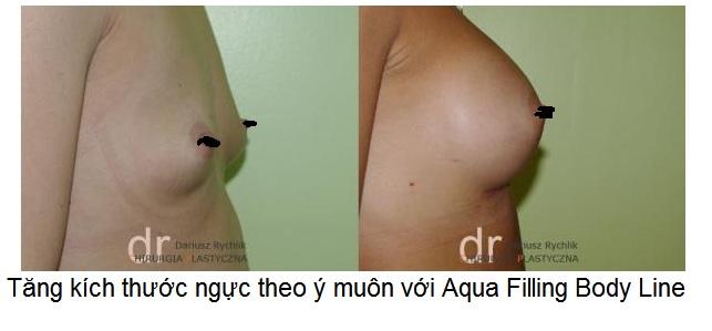 Aqua Filling Body Line Viet Nam ban tai Y Khoa Kim Minh