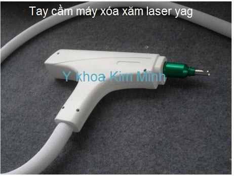Bán tay cầm máy laser xóa xăm tattoo Y Khoa Kim Minh