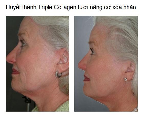 Dia chi cung cap ban gia si collagen tuoi Nhat Ban Y Khoa Kim Minh