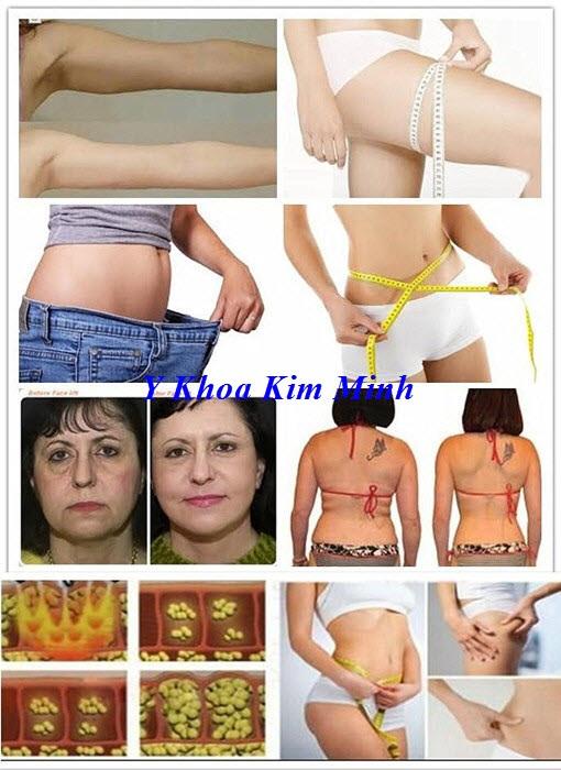Cong dung cua may giam beo RF Cavitation 40K 4 Max - Y khoa Kim Minh 0933455388