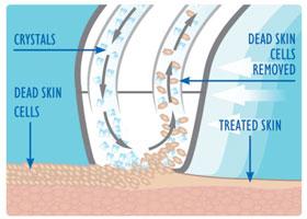 Máy tái tạo da sinh học trẻ hóa da KM-034