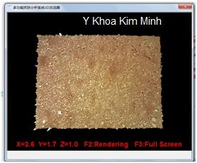 Phan mem phan tich may soi da VF3000 Y Khoa Kim Minh