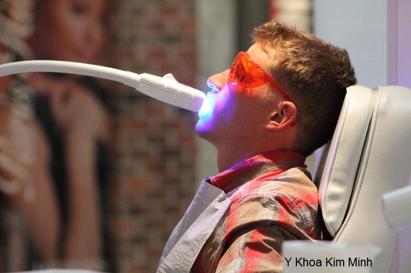 Cong ty Kim Minh ban den laser tay trang rang nhap khau