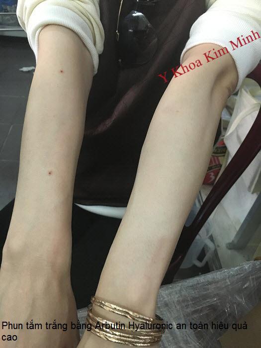 Kem phun trắng AHA Arbutin Hyaluronic Axit Hàn Quốc bán tại địa chỉ Y Khoa Kim Minh