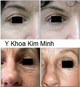 Điều trị trẻ hóa da bằng công nghệ Thermage RF KTM-800 Y Khoa Kim Minh