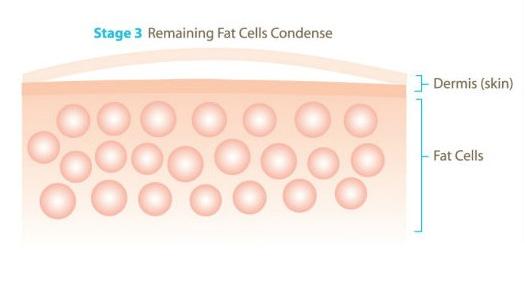 Giảm béo công nghệ quang đông Cryolipolysis