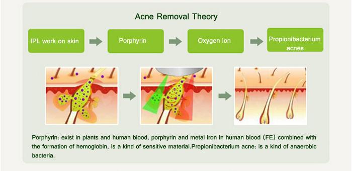 Máy điều trị triệt lông IPL KG-582