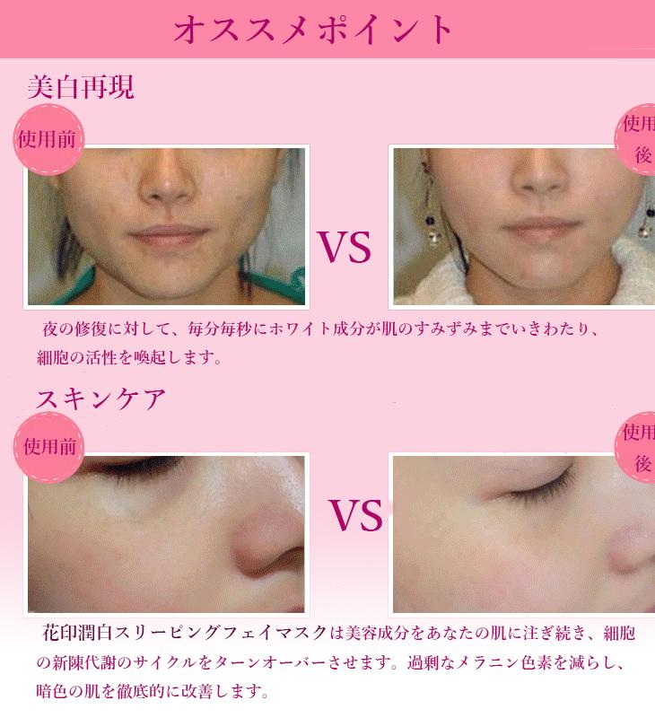 Kem collagen tuoi duong trang da Hanajirushi ban tai Y Khoa Kim Minh