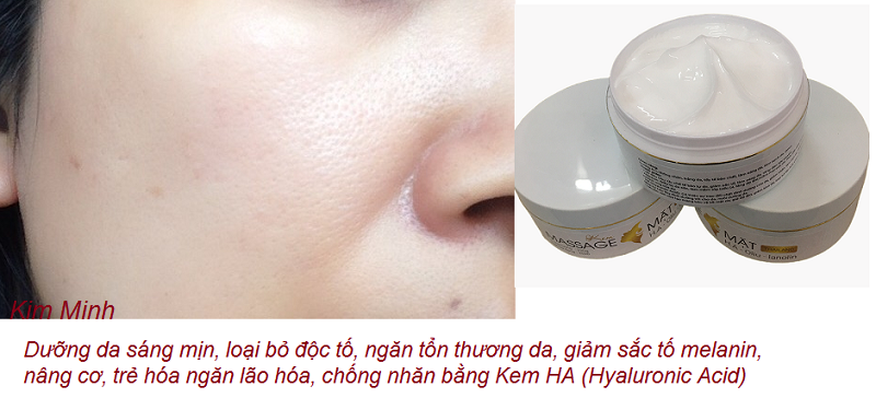 Kem massage duong da mat sang trang min chong lao hoa HA nhap Thai Lan ban tai Y Khoa Kim Minh