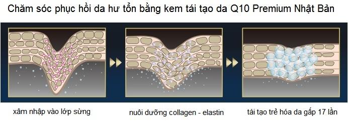 Kem tre hoa tai tao da Q10 Premium Nhat Ban phan phoi gia si tai Y Khoa Kim Minh