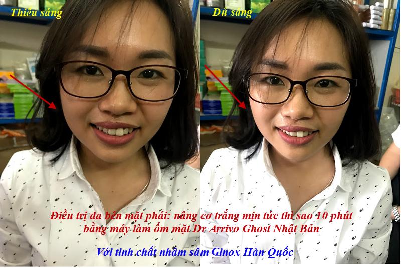 Kết quả điều trị da mặt với tinh chất nhân sâm Ginox hồi sinh da và máy Dr Arrivo Ghost Nhật Bản, nâng cơ, trắng mịn da tức thì sau 8 phút - Y khoa Kim Minh