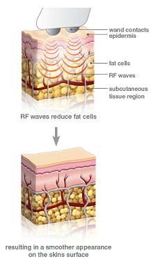 Máy trẻ hóa tái tạo da