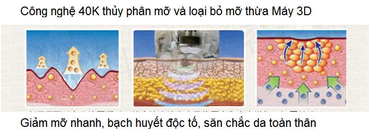 May giam beo toan than cong nghe 3D RF 40K Y Khoa Kim Minh ban tai tp hochiminh 0933455388