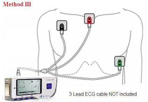 Máy kiểm tra tim mạch mini Prince-180B Y Khoa Kim Minh