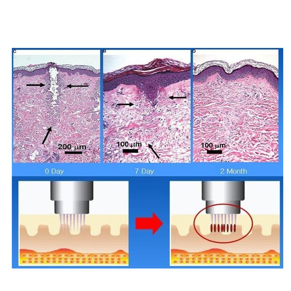 Máy trẻ hóa da xóa nhăn làm mịn da RF Thermage mini