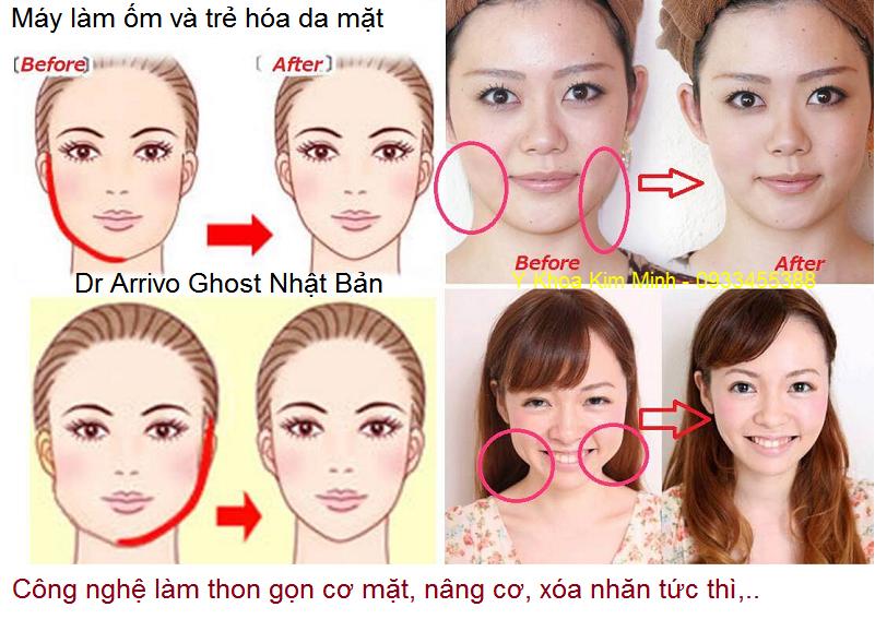 May lam om co mat, may chong nhan, tre hoa da tuc thi Dr Arrivo Ghost Nhat Ban - Y khoa Kim Minh 0933455388