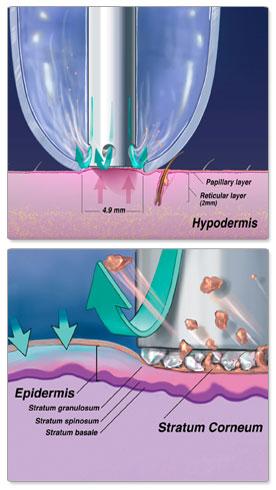 Máy trẻ hóa da tẩy tế bào chết Hydro Microdermabrasion