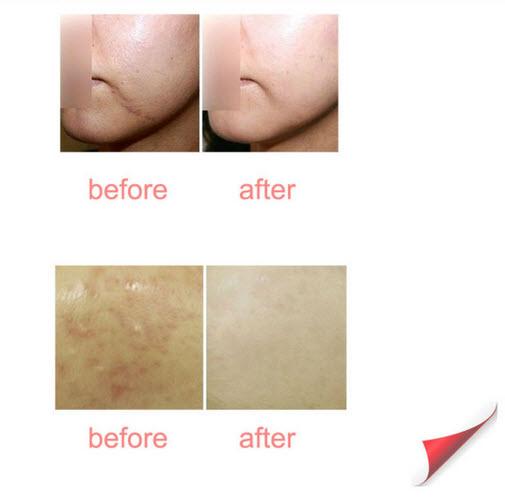 Trẻ hóa da trị mụn trị nám xóa sẹo rỗ và sẹo mụn bằng KMR18