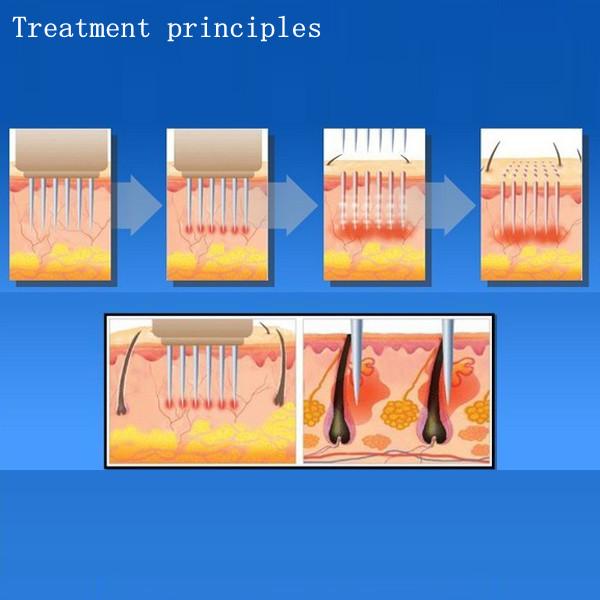 Máy trẻ hóa da làm min da trị mụn RF mini