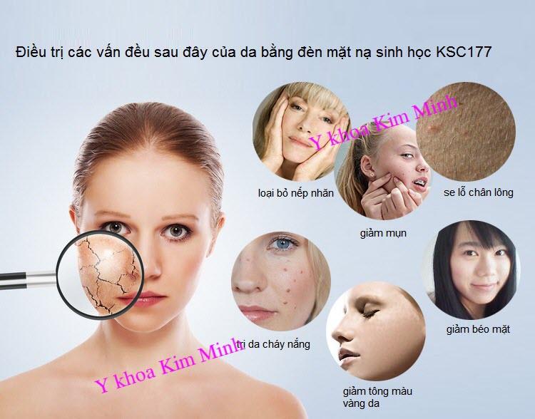 Mua den mat na u trang da sinh hoc bioled o dau Y Khoa Kim Minh