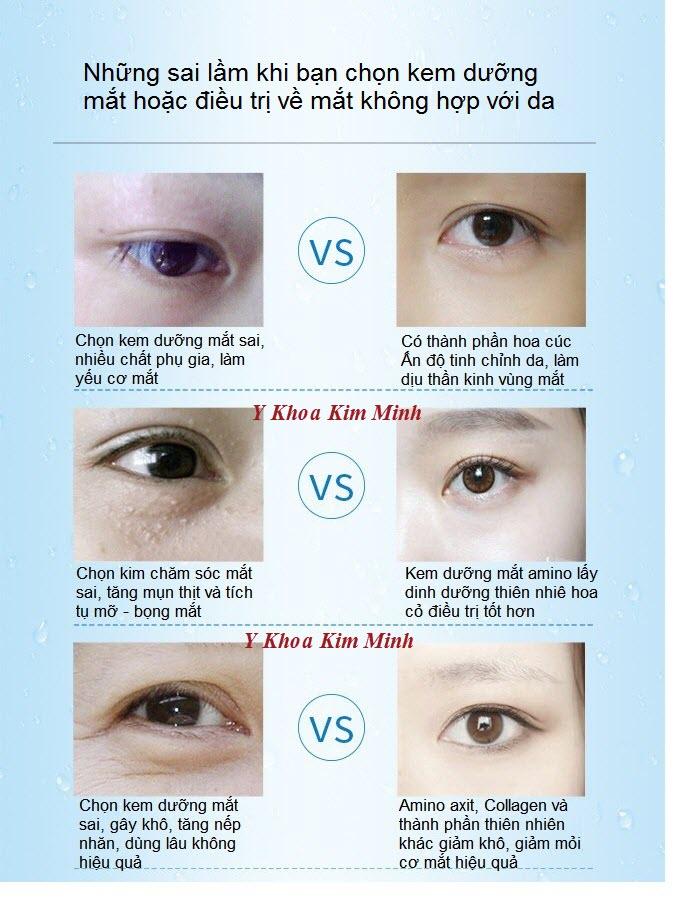 Mua kem chữa thâm sạm nhăn da vùng mắt ở đâu hiệu quả? - Y khoa Kim Minh 0933455388