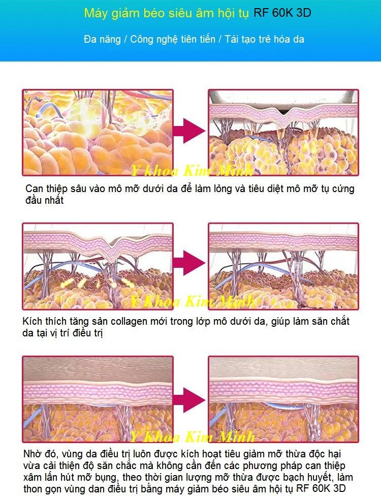 Giảm béo siêu nhanh bằng công nghệ máy RF siêu âm hội tụ 60K 3D - Y khoa Kim Minh 0933455388