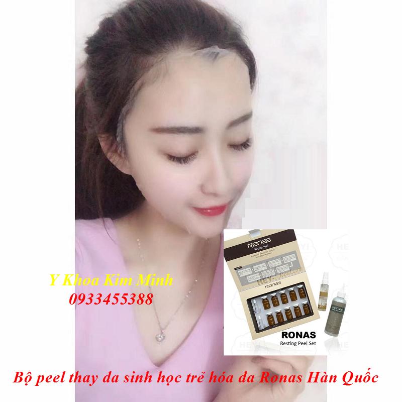 Bo peel thay da sinh hoc Han Quoc, Ronas vi kim tao silic - Y khoa Kim Minh