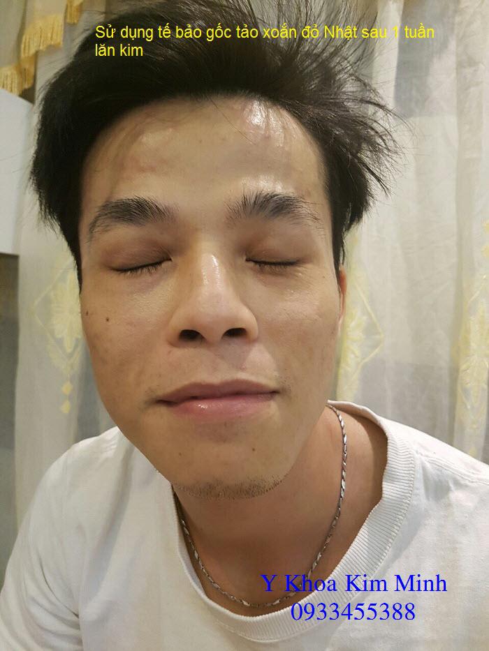 Su dung te bao goc do tao xoan Nhat lan kim tri mun Y Khoa Kim Minh