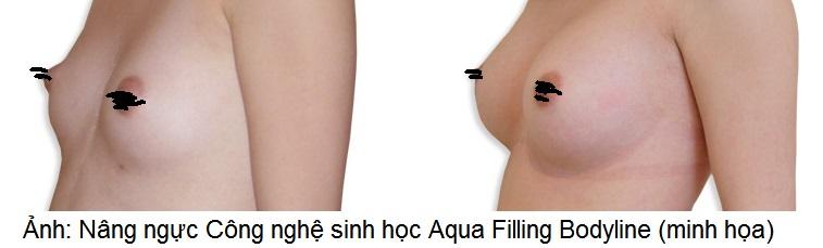 Aqua Filling Bodyline chích tăng kích thước ngực như mong muốn Y Khoa Kim Minh