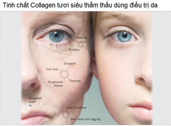 Tinh chat collagen tuoi Nhat ban nhap khau ban tai Y Khoa Kim Minh