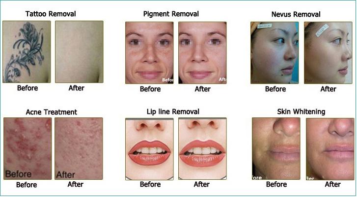 Tính năng điều trị và công dụng của máy laser xóa xăm trị nám trẻ hóa da SKM-219 - Y Khoa Kim Minh 0933455388