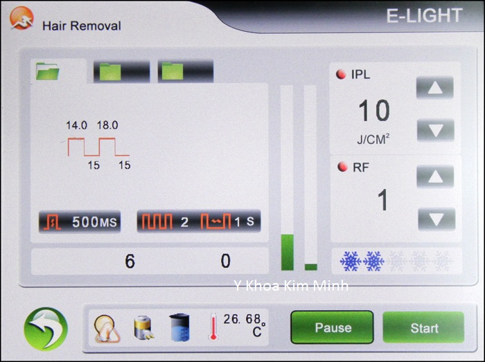Máy triệt lông vĩnh viễn E-light đa năng KV-300 bán Y Khoa Kim Minh 13