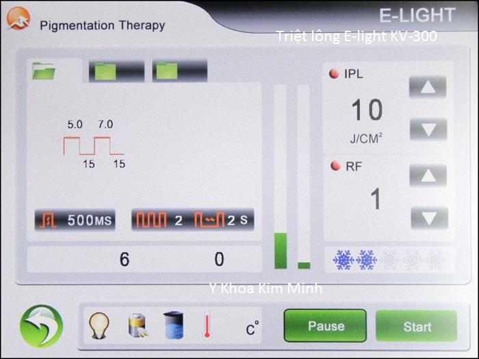 Máy triệt lông vĩnh viễn E-light đa năng KV-300 bán Y Khoa Kim Minh 18