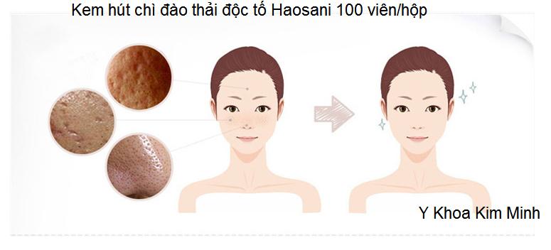 Vien thai chi hut doc to Haosani 100 vien Y Khoa Kim Minh