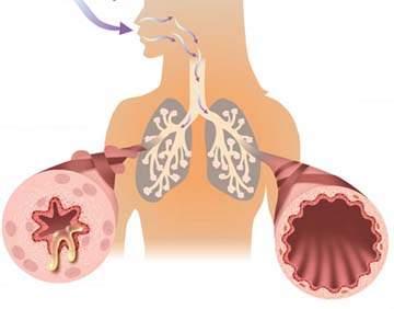 Bệnh hen suyễn và bệnh viêm phổi mạn tính