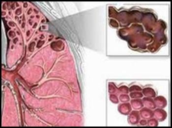 bệnh suy tắc nghẽn phổi mạn tính COPD