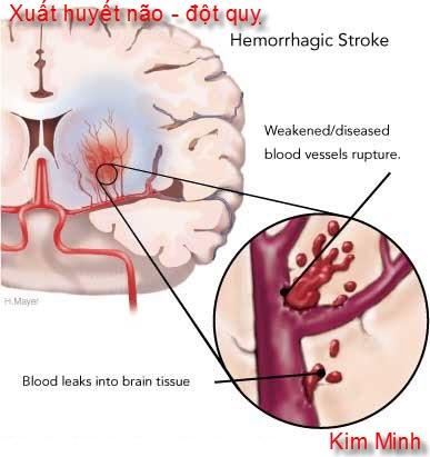 tai biến mạch máu não, cơn đột quỵ