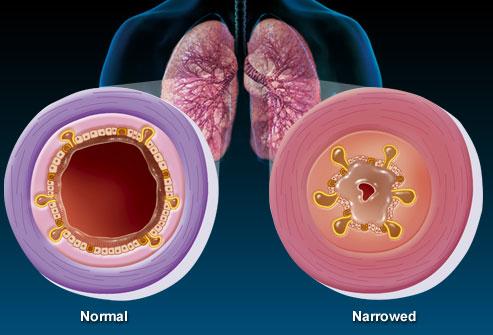 Bệnh viêm phế quản mãn tính và nguyên nhân