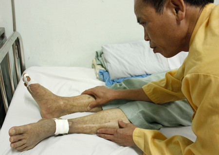 Cách chữa trị bệnh tê tay chân do tiểu đường