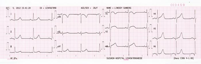 Giấy in máy điện tim suzuken Cardio 306