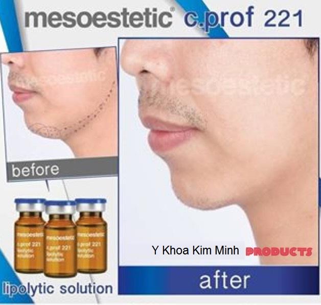 Chat chich tao cam vline khuon mat lipolytic solution c prof 221 Y Khoa Kim Minh