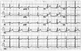 điện tâm đồ bằng máy điện tim ECG