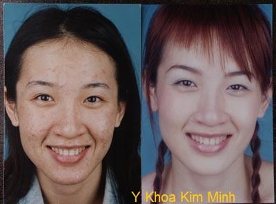 Serum điều trị sẹo mụn EGF Y Khoa Kim Minh