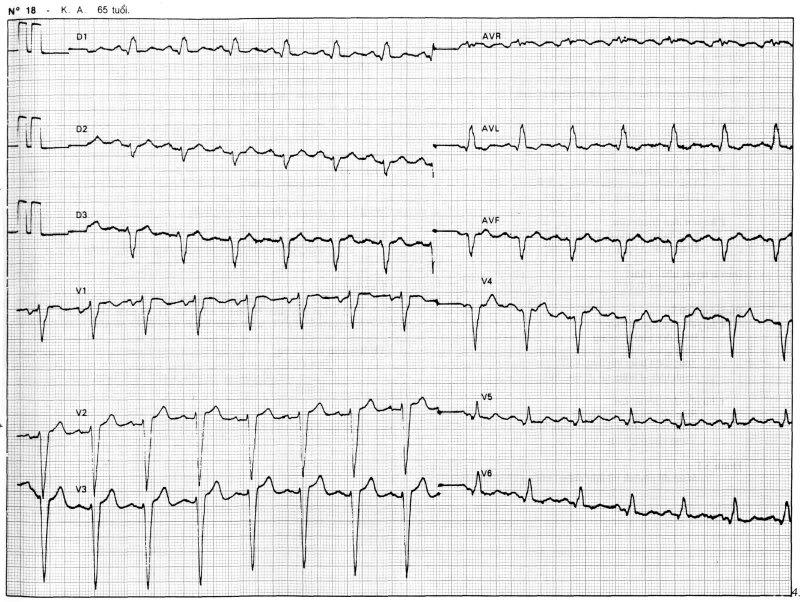 máy điện tim phát hiện nhồi máu cơ, viêm tim