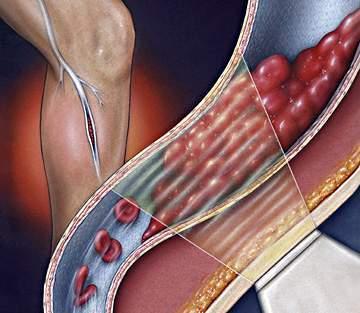 thuyên tắt động mạch ngoại biên bị xơ vữa