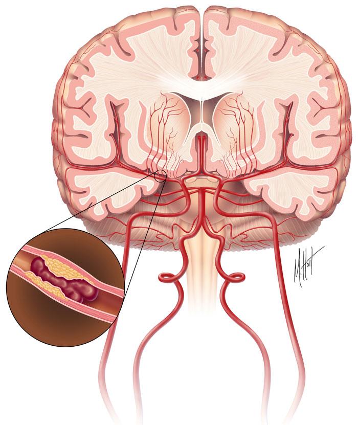 Bệnh tai biến mạch máu não không dùng máy đo huyết áp
