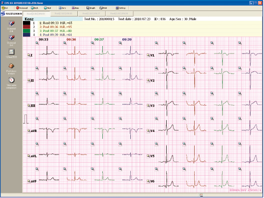 Giấy in máy điện tim 6 cần Suzuken Cardio 601